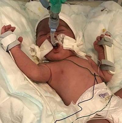 奇迹!英国一孕妇腹部中箭身亡 胎儿幸免于难