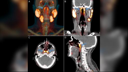 科学家意外在喉咙旁边发现新器官,可以减轻癌症治疗的副作用