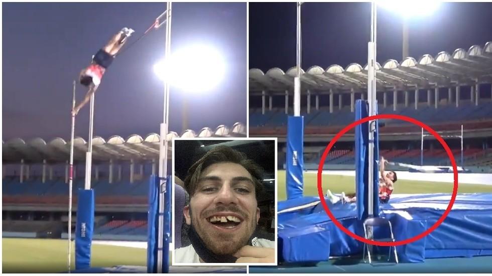 英国奥运选手训练时磕坏门牙 晒自拍:希望东京有好牙医(图)